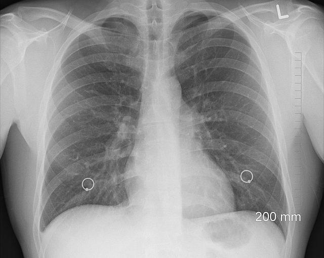 Jakie są objawy zapalenia płuc? Jak leczyć zapalenie płuc?