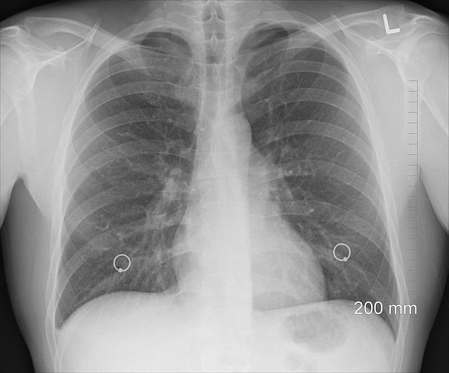 Prześwietlenie płuc rentgen